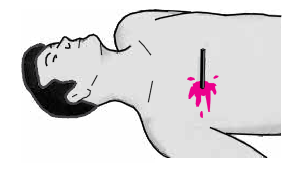 kalp-masajı